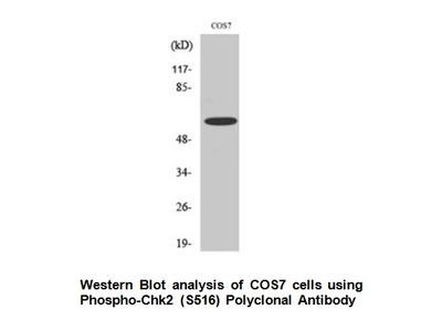 Phospho-Chk2 (Ser516) Antibody