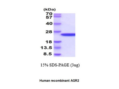 Anterior gradient 2 homolog, human recombinant