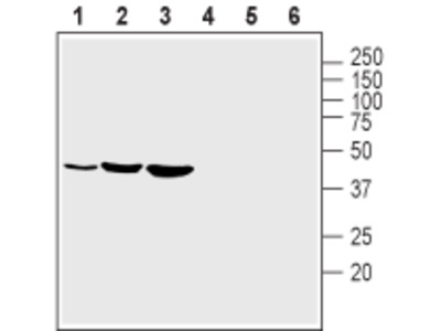 Anti-Kir2.1 (KCNJ2) (extracellular) Antibody