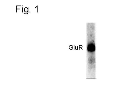 Phospho-GluR1 (Ser845) Polyclonal Antibody