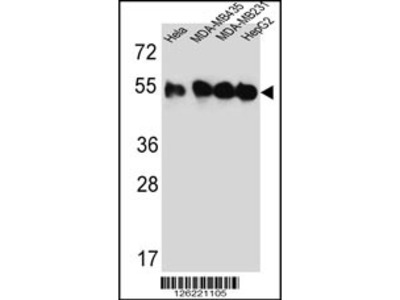 TUBB2C Antibody