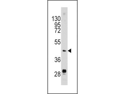 Urokinase Antibody