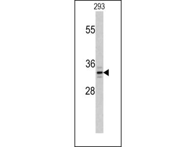PPT1 Antibody