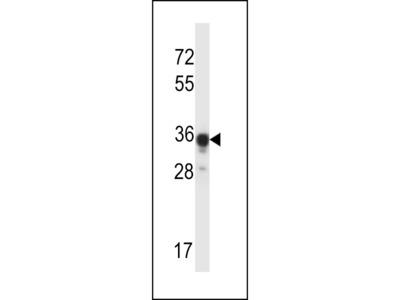 ABHD4 Antibody