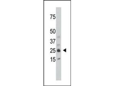 SULT1C1 Antibody