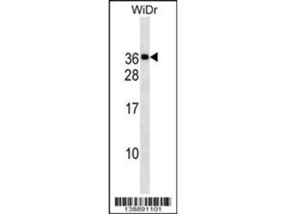 MED30 Antibody