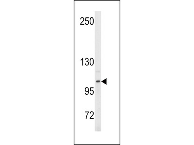 ENPP2 Antibody