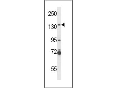 NOS2A Antibody