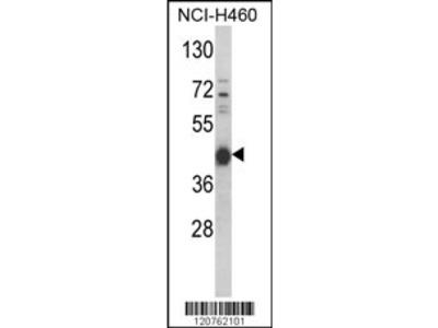 PRKACA Antibody