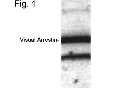 S-arrestin Polyclonal Antibody