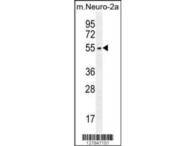 ZDHHC1 Antibody