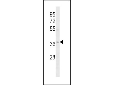OR5W2 Antibody