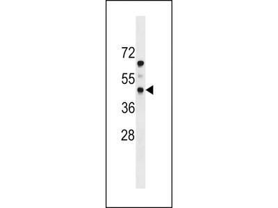 PDGFRL Antibody