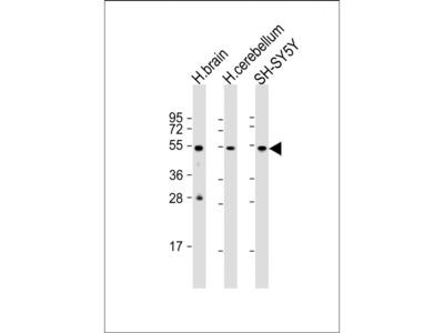 TUBB3 Antibody