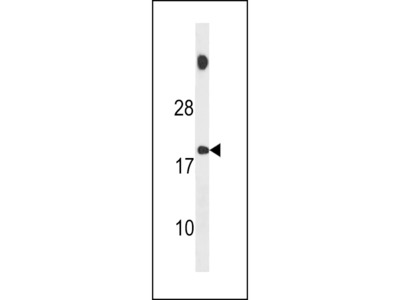 SPNXB Antibody