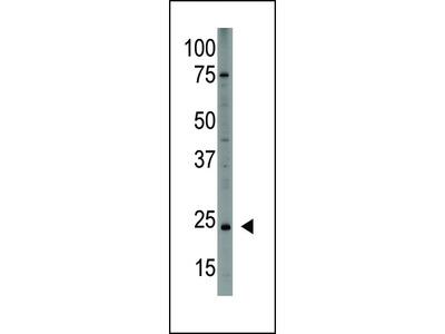 PDGFA Antibody