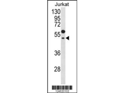 GNAT1 Antibody