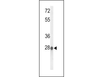 ABHDB Antibody