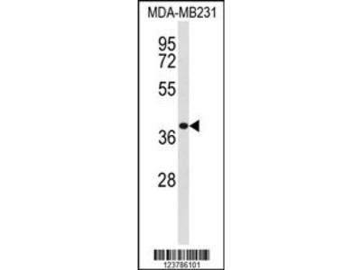 EXTL2 Antibody