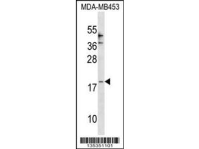 CCL25 Antibody