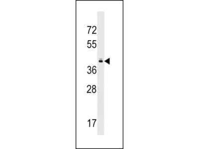 TAS2R10 Antibody
