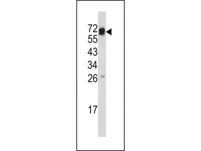 CD105 Antibody 61-573 from ProSci, Inc | Biocompare com