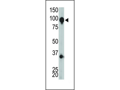 Metabotropic Glutamate Receptor 8 Antibody