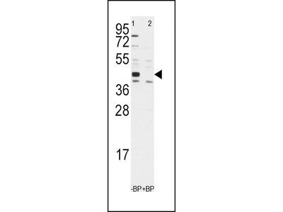 ALDH1A3 Antibody