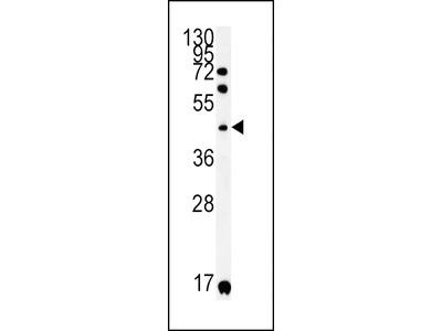 KIR2DS2 Antibody
