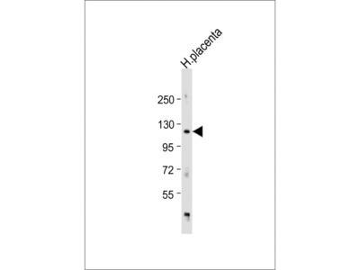 ADAM19 Antibody