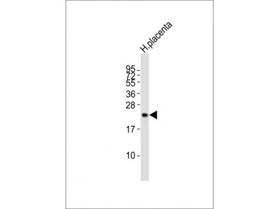 CGB/HCG-Beta Antibody