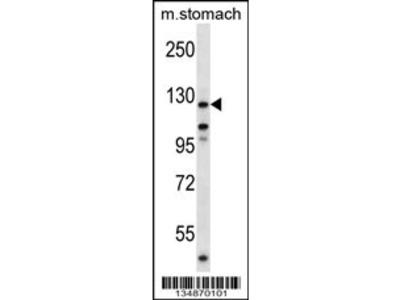 Mouse Ptk2 Antibody