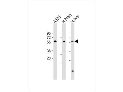 DLL3 Antibody