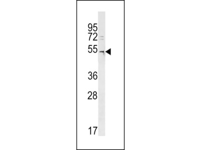 DCAF12L2 Antibody