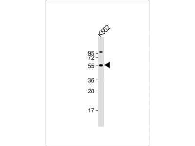 CYP2D6 Antibody