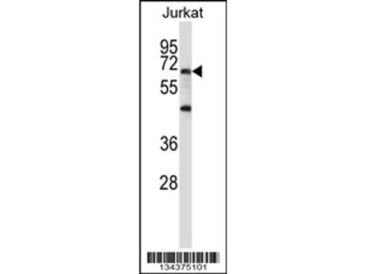 PRDM6 Antibody