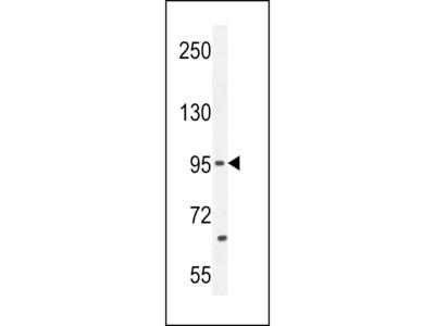 PCDH20 Antibody