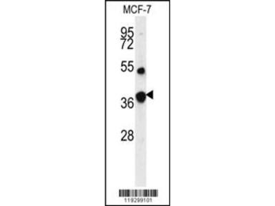 FBP1 Antibody