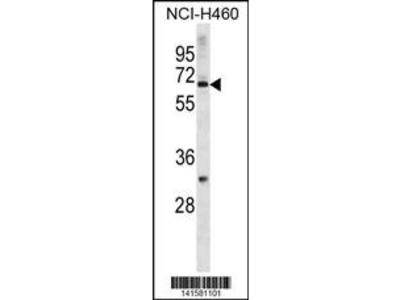 ZNF185 Antibody