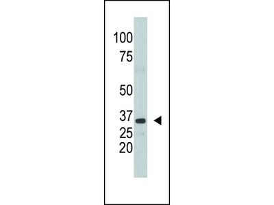 SULT1A1 Antibody