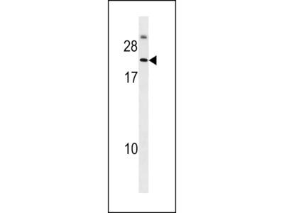 Podoplanin / GP36 / T1A-2 Antibody