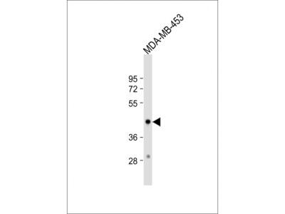 HSD17B2 Antibody