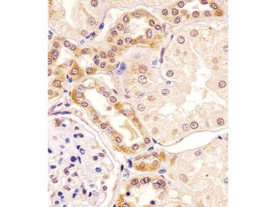 PKC beta1/2 Antibody