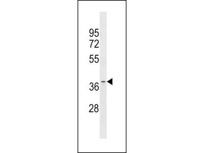 OR11A1 Antibody