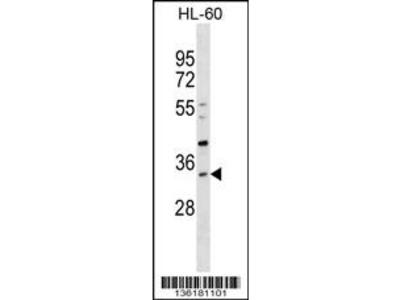 SULT1B1 Antibody