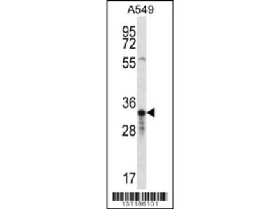 OR4F5 Antibody