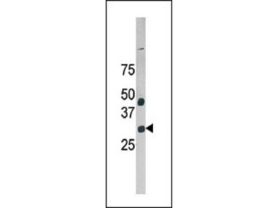 GAS41 Antibody