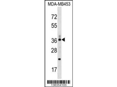 CD68/CD68 Antibody