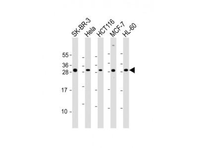 NAA10 Antibody