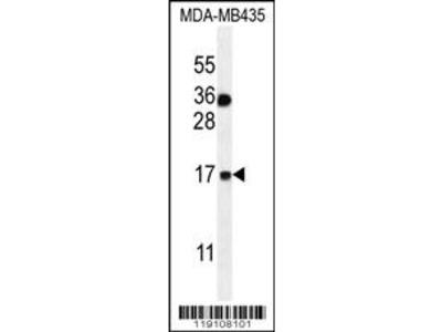 S100A1 Antibody